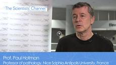 Evaluating Tumor Mutational Burden with NGS